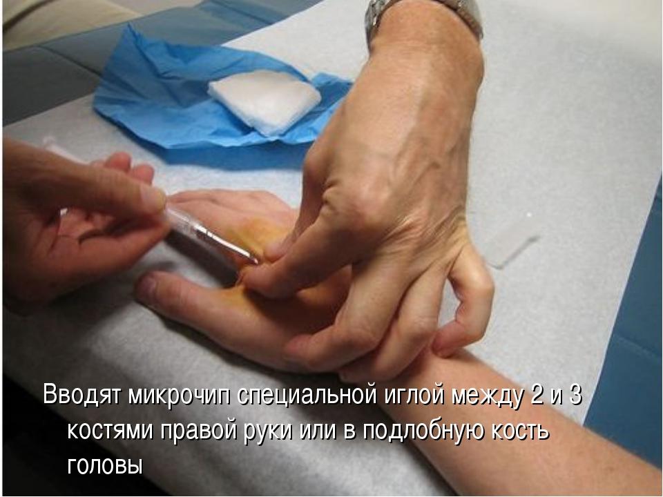 Вводят микрочип специальной иглой между 2 и 3 костями правой руки или в подло...