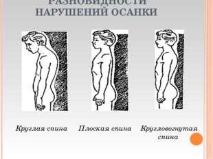 РАЗНОВИДНОСТИ НАРУШЕНИЙ ОСАНКИ Круглая спина Кругловогнутая спина Плоская сп
