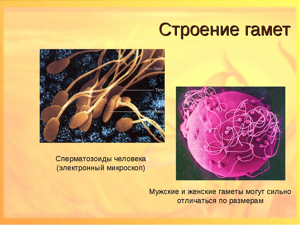 prichina-net-zhivih-spermatozoidov