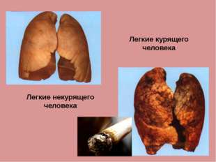 Легкие некурящего человека Легкие курящего человека