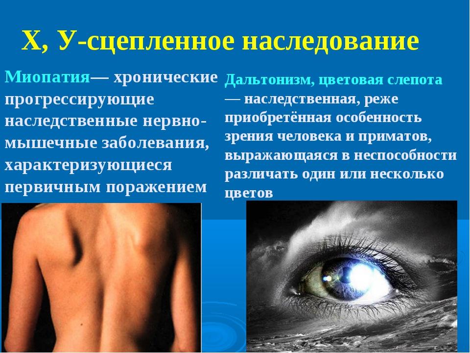 Х, У-сцепленное наследование Миопатия— хронические прогрессирующие наследстве...