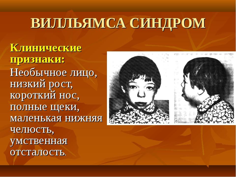 ВИЛЛЬЯМСА СИНДРОМ Клинические признаки: Необычное лицо, низкий рост, короткий...