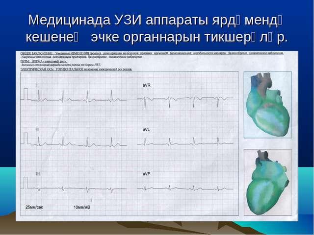 Медицинада УЗИ аппараты ярдәмендә кешенең эчке органнарын тикшерәләр.