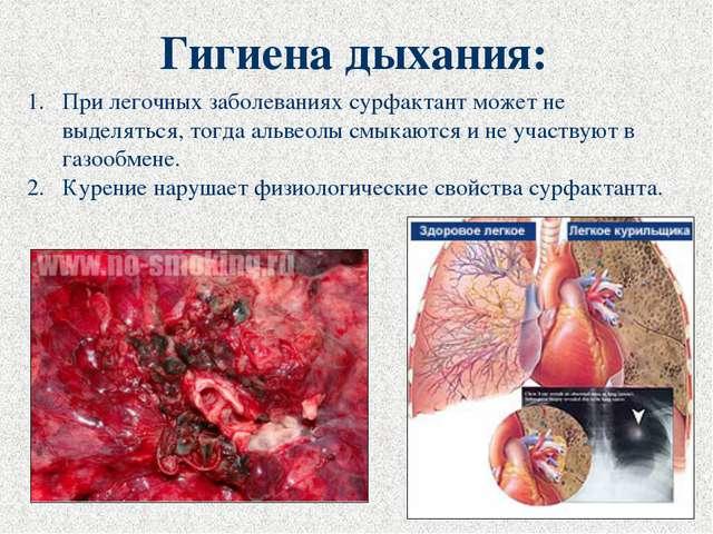 Гигиена дыхания: При легочных заболеваниях сурфактант может не выделяться, то...