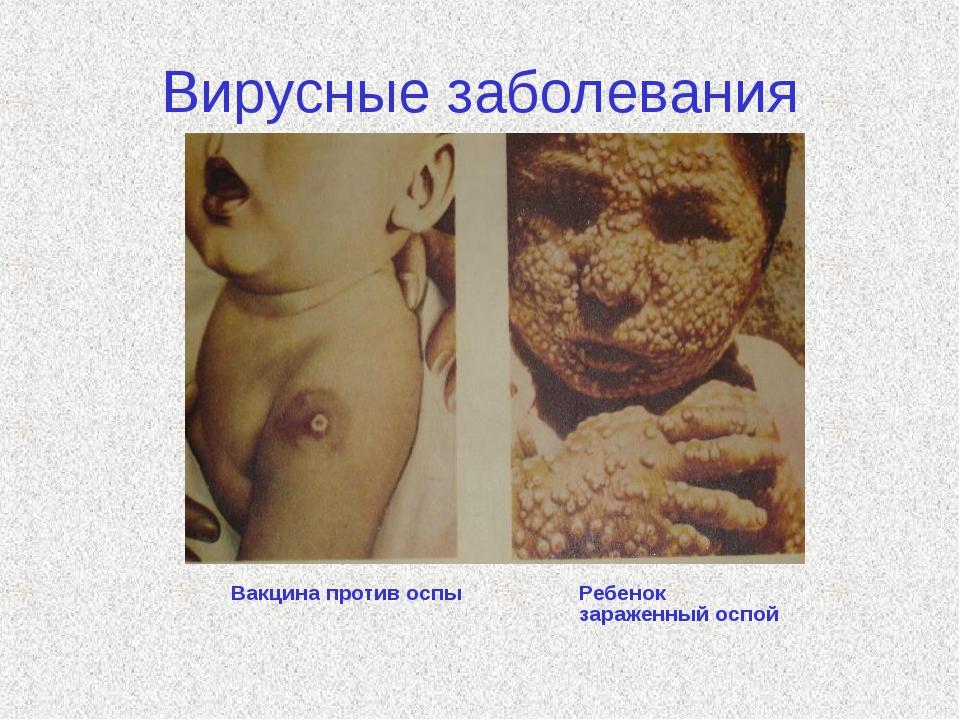 Вирусные заболевания Вакцина против оспы Ребенок зараженный оспой