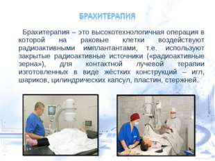 Брахитерапия – это высокотехнологичная операция в которой на раковые клетки