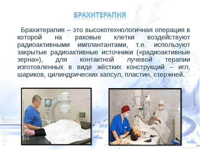 Брахитерапия – это высокотехнологичная операция в которой на раковые клетки...