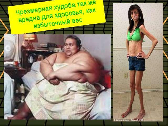 Чрезмерная худоба так же вредна для здоровья, как избыточный вес