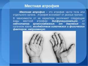 Местная атрофия Местная атрофия – это атрофия части тела или отдельного орган