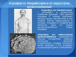 Атрофия от бездействия и от недостатка кровоснабжения Атрофия от бездействия