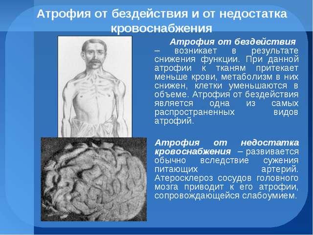 Атрофия от бездействия и от недостатка кровоснабжения Атрофия от бездействия...