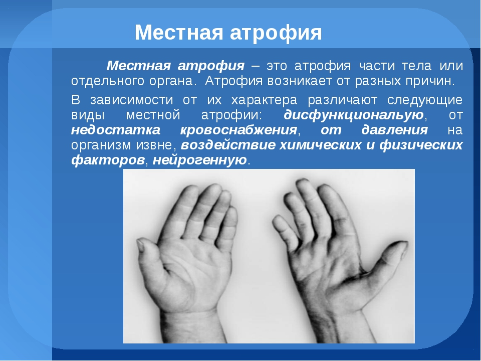 Местная атрофия Местная атрофия – это атрофия части тела или отдельного орган...