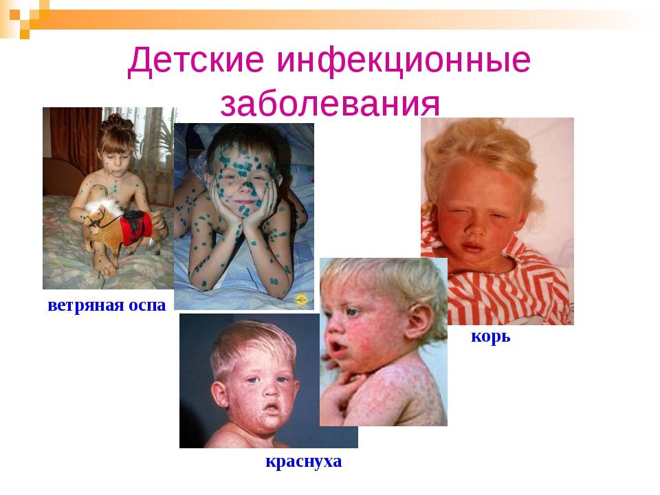 Детские инфекционные заболевания ветряная оспа корь краснуха