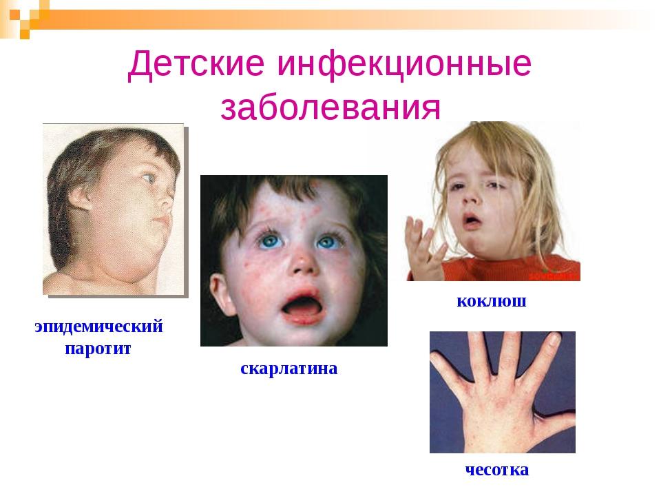 Детские инфекционные заболевания эпидемический паротит коклюш скарлатина чесо...