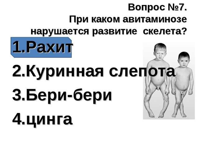 Вопрос №7. При каком авитаминозе нарушается развитие скелета? Рахит Куринная...