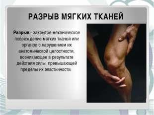 РАЗРЫВ МЯГКИХ ТКАНЕЙ Разрыв- закрытое механическое повреждение мягких тканей