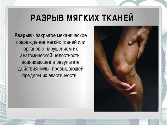 РАЗРЫВ МЯГКИХ ТКАНЕЙ Разрыв- закрытое механическое повреждение мягких тканей...
