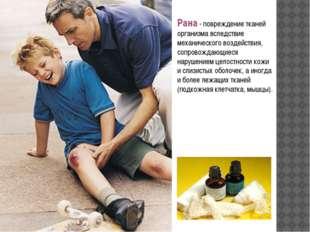 Рана- повреждение тканей организма вследствие механического воздействия, соп