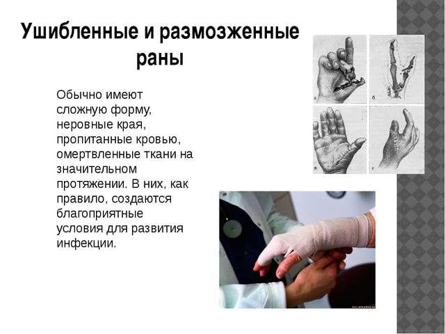 Ушибленные и размозженные раны Обычно имеют сложную форму, неровные края, про...