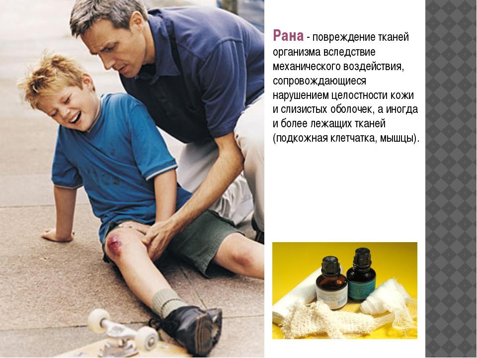 Рана- повреждение тканей организма вследствие механического воздействия, соп...