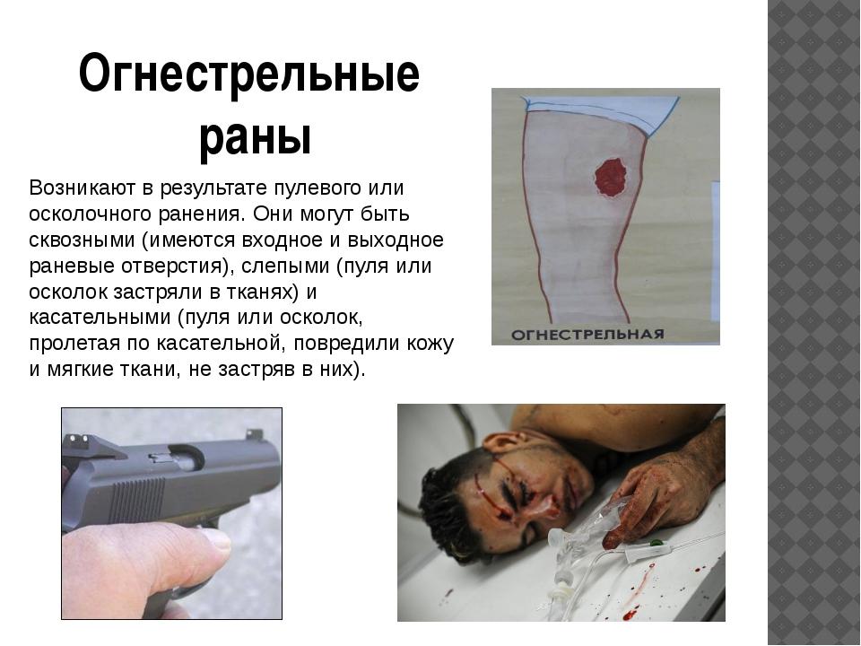 Возникают в результате пулевого или осколочного ранения. Они могут быть сквоз...