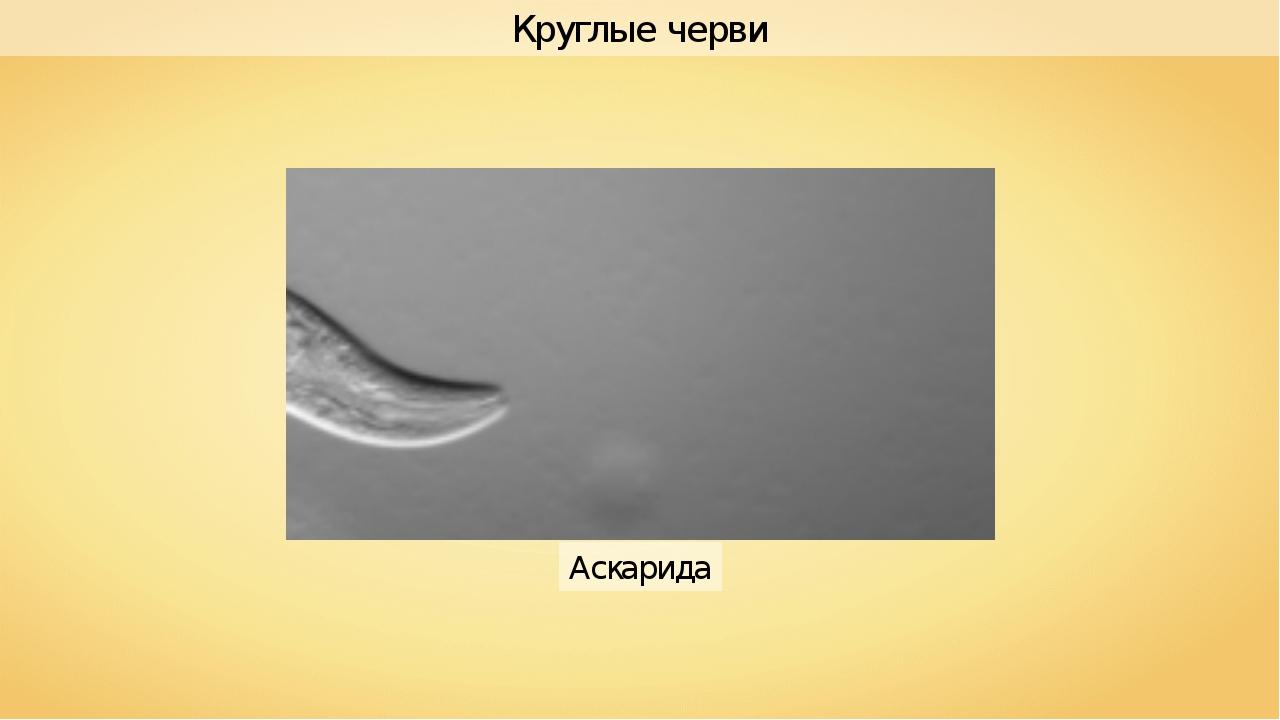 Аскарида Круглые черви