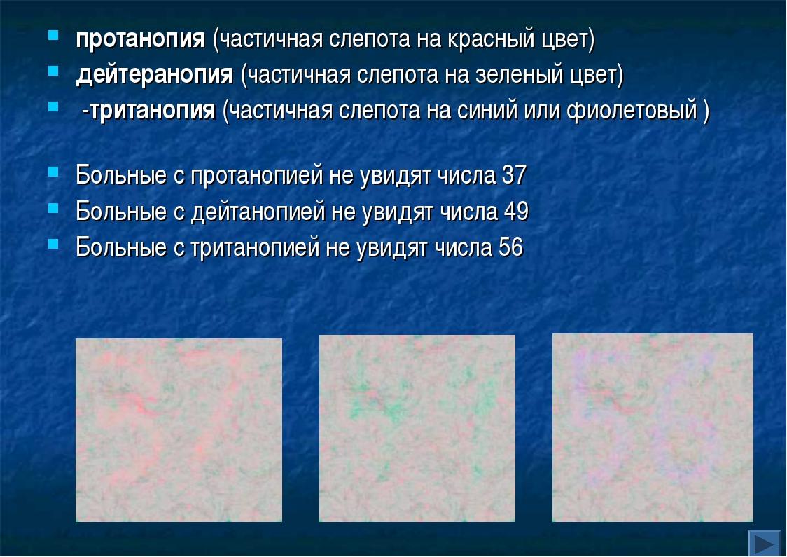 протанопия (частичная слепота на красный цвет) дейтеранопия (частичная слепот...