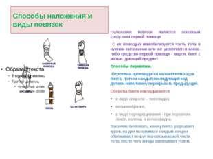Способы наложения и виды повязок Наложение повязок является основным средство
