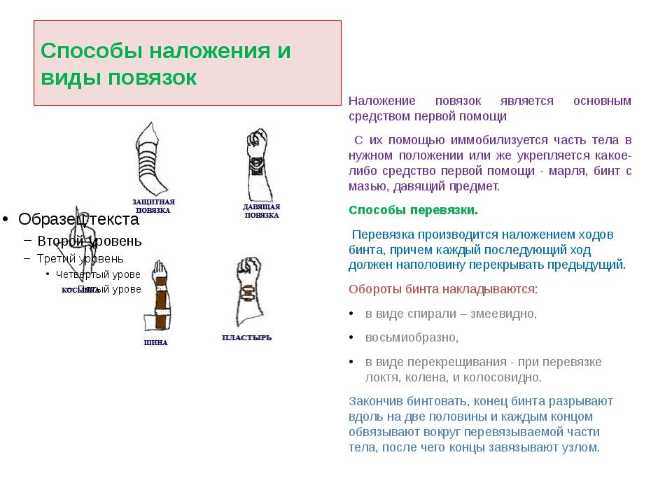 Способы наложения и виды повязок Наложение повязок является основным средство...