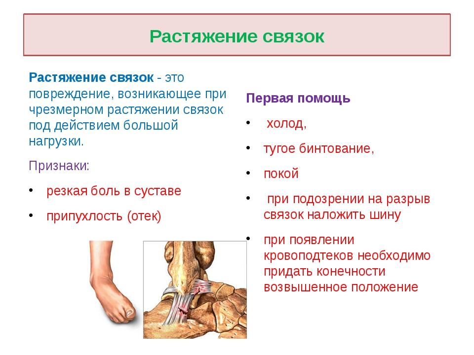 Растяжение связок Растяжение связок - это повреждение, возникающее при чрезме...