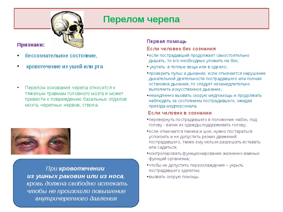 Перелом черепа Признаки: бессознательное состояние, кровотечение из ушей или...