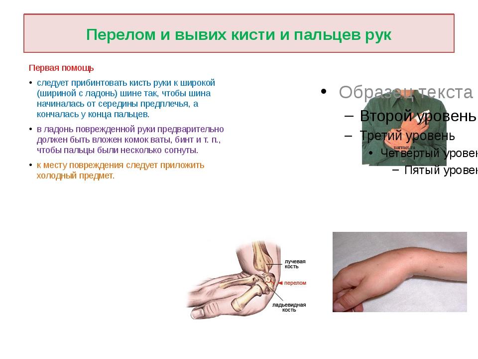 Перелом и вывих кисти и пальцев рук Первая помощь следует прибинтовать кисть...