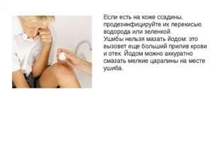 Если есть на коже ссадины, продезинфицируйте их перекисью водорода или зеленк