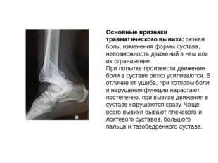 Основные признаки травматического вывиха: резкая боль, изменения формы сустав