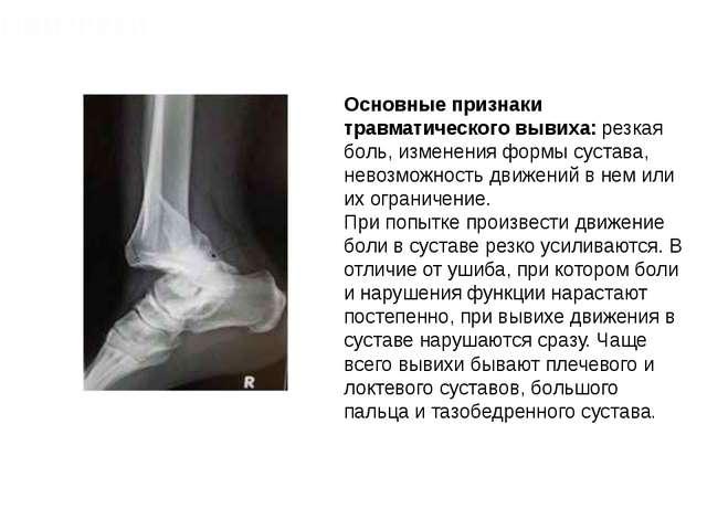 Основные признаки травматического вывиха: резкая боль, изменения формы сустав...
