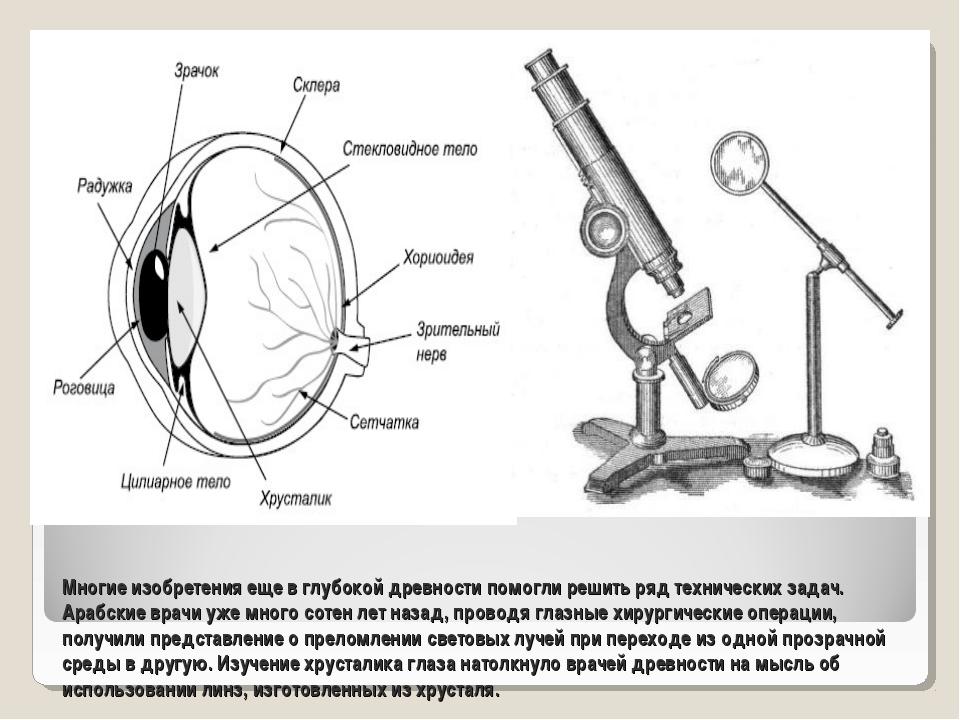 Многие изобретения еще в глубокой древности помогли решить ряд технических за...