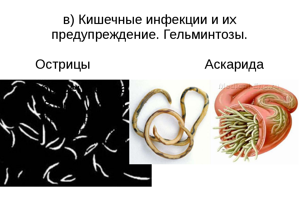в) Кишечные инфекции и их предупреждение. Гельминтозы. Острицы Аскарида