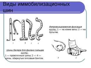 Виды иммобилизационных шин Шины Белера для фаланг пальцев кисти: 1 — проволоч