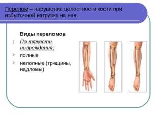 Перелом – нарушение целостности кости при избыточной нагрузке на нее. Виды пе