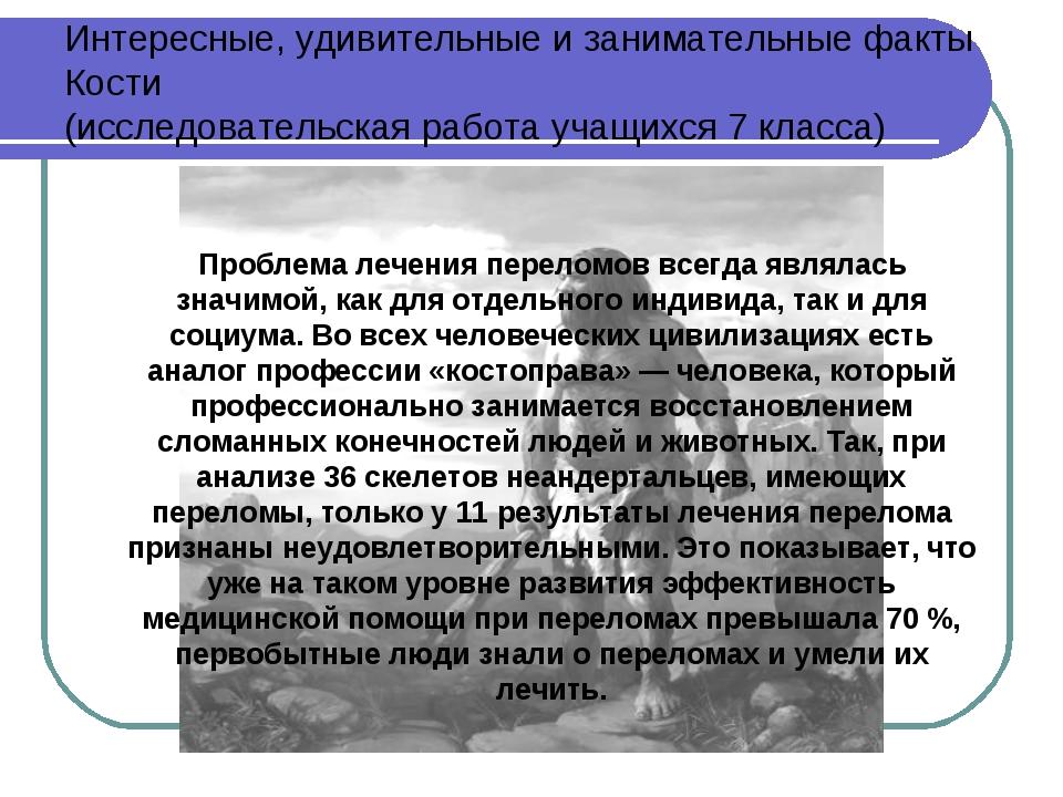 Интересные, удивительные и занимательные факты Кости (исследовательская рабо...