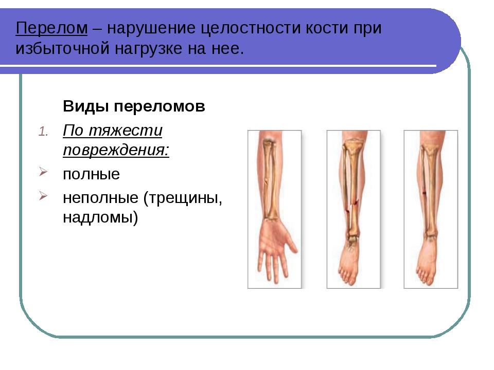 Перелом – нарушение целостности кости при избыточной нагрузке на нее. Виды пе...