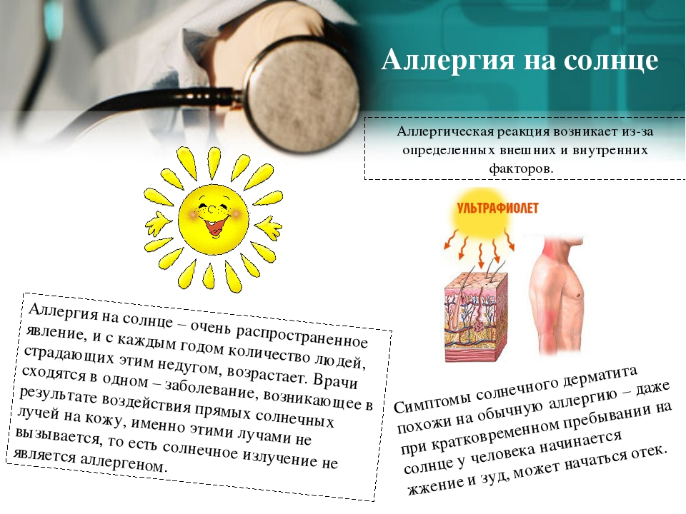 Аллергия на солнце Аллергия на солнце – очень распространенное явление, и с к...