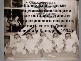 Наиболее известными однояйцевыми близнецами, которые остались живы и достигли
