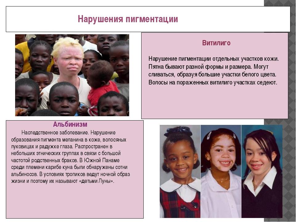 Нарушения пигментации Альбинизм Наследственное заболевание. Нарушение образо...
