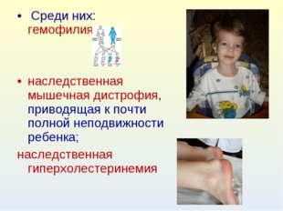 Среди них: гемофилия; наследственная мышечная дистрофия, приводящая к почти