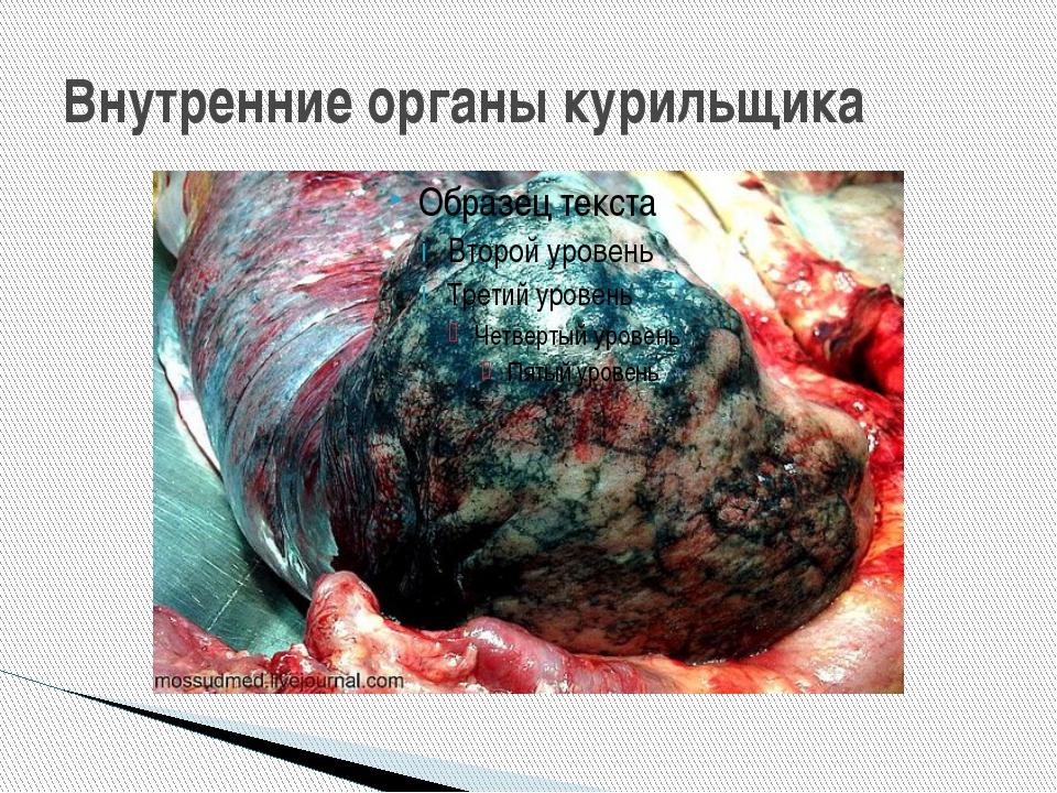 Внутренние органы курильщика