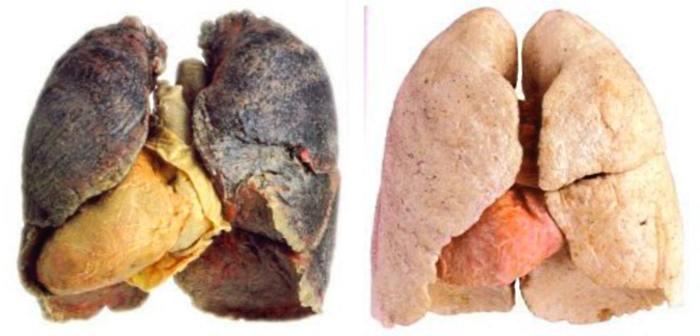 легкие курильщика жесть фото