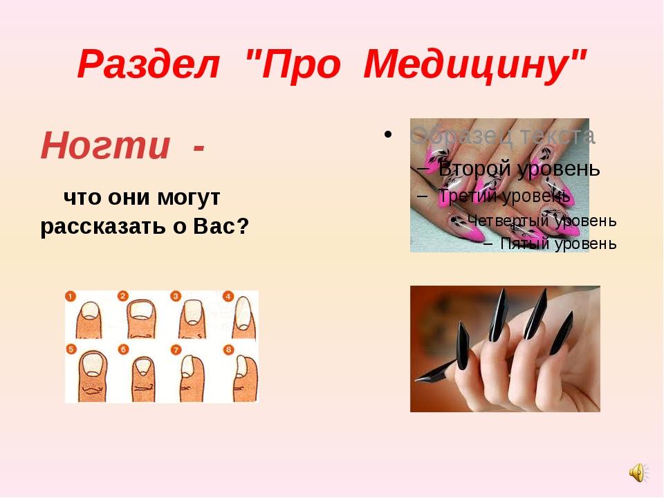 """Раздел """"Про Медицину"""" Ногти - что они могут рассказать о Вас?"""