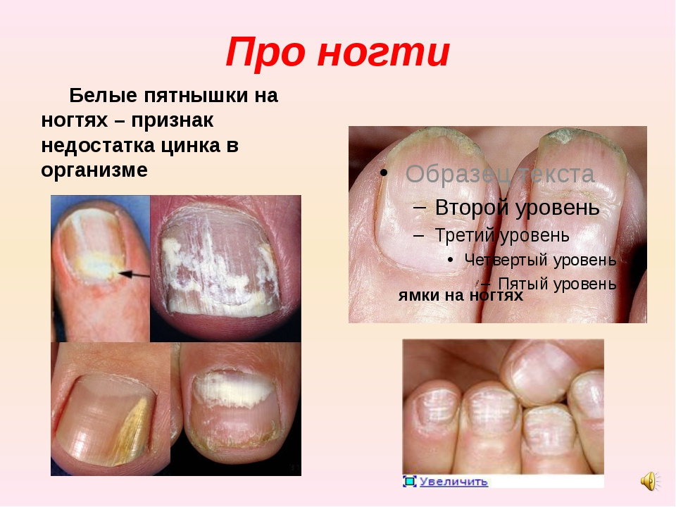 Про ногти Белые пятнышки на ногтях – признак недостатка цинка в организме ямк...