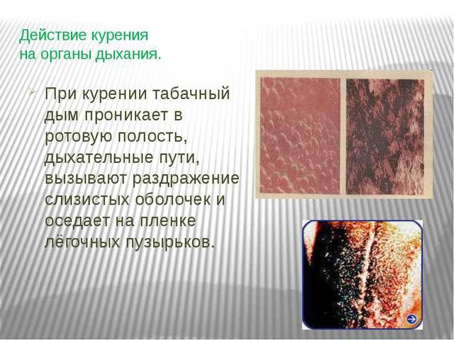 Действие курения на органы дыхания. При курении табачный дым проникает в рото...